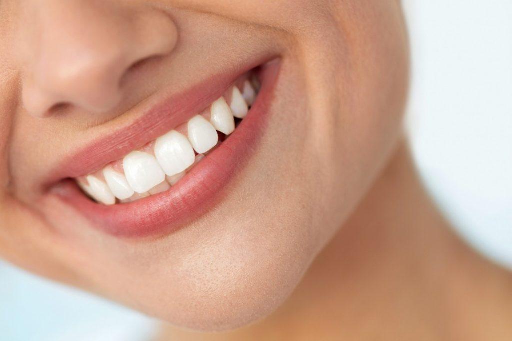 Licówki – sposób na piękny uśmiech