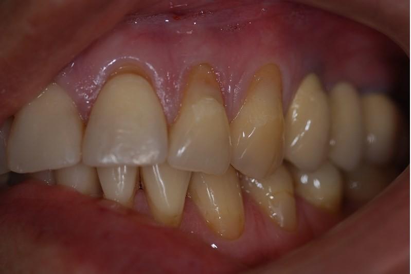 Nieleczone zęby niszczą cały organizm
