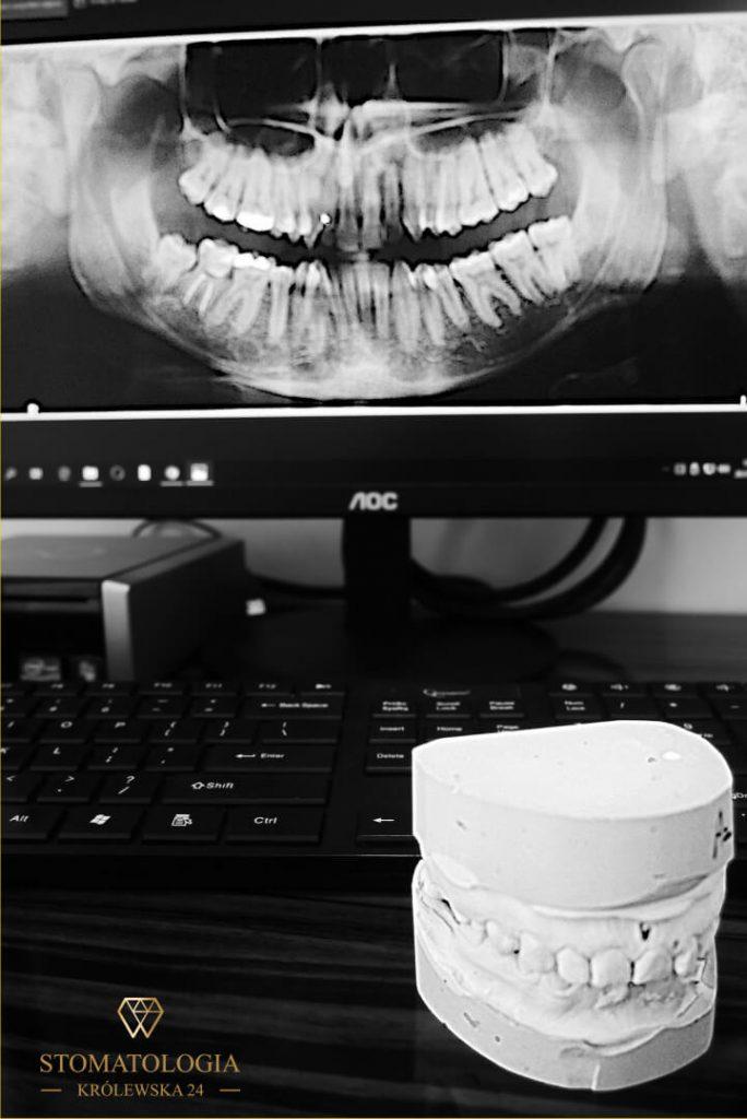 endodoncja zdjęcie