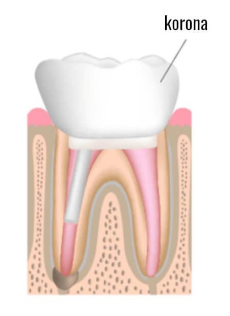 odbudowa korony zęba