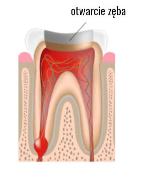 otwarcie zęba