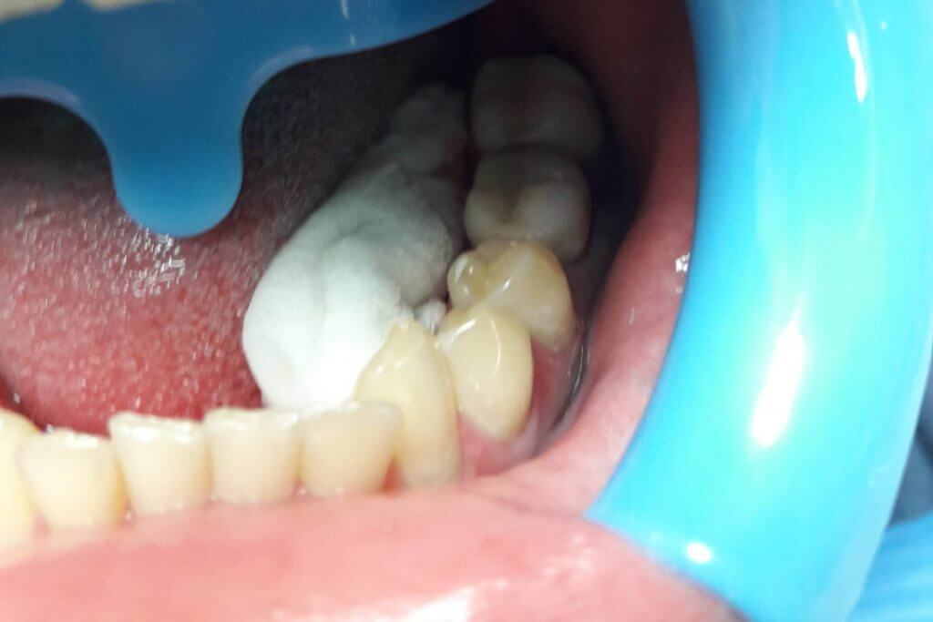 implant czy korona ?